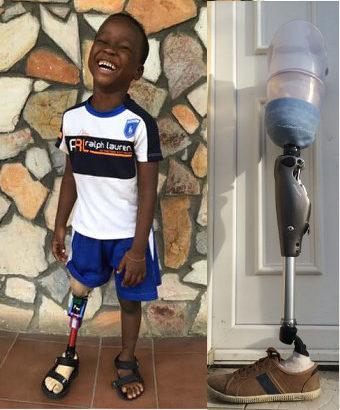 prothèses pour l'Afrique